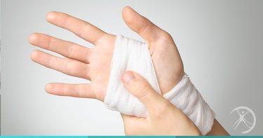 Cirurgia da mão - Tronco e Membros - Cirurgia Reconstrutora - Dr. Fernando Rodrigues - Cirurgião Plástico BH