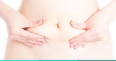 Plástica do abdome ou Abdominoplastia - Contorno Corporal - Cirurgia Estética - Dr. Fernando Rodrigues - Cirurgião Plástico BH