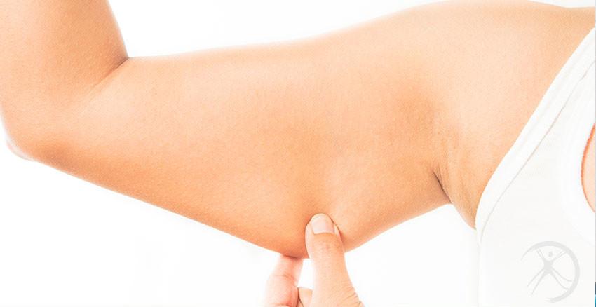 Cirurgia plástica dos braços – Cirurgia  estética – Dr. Fernando