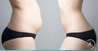 Cirurgias pós-emagrecimento - Contorno Corporal - Cirurgia Estética - Dr. Fernando Rodrigues - Cirurgião Plástico BH