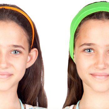 Correção de orelhas de abano - Contorno Facial - Cirurgia Estética - Dr. Fernando Rodrigues - Cirurgião Plástico BH