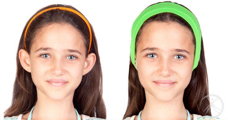 Correção de orelhas de abano