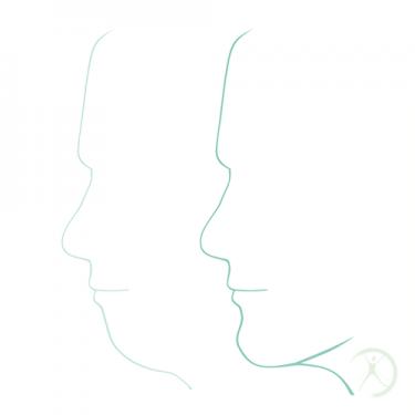 Ilustração: Aumento do queixo - Contorno Facial - Cirurgia Estética - Autor: Dr. Fernando Rodrigues