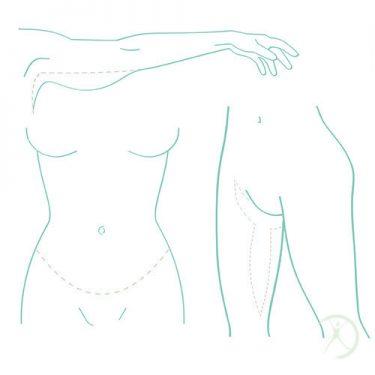 Ilustração: Cirurgias pós-emagrecimento - Contorno Corporal - Cirurgia Estética - Autor: Dr. Fernando Rodrigues