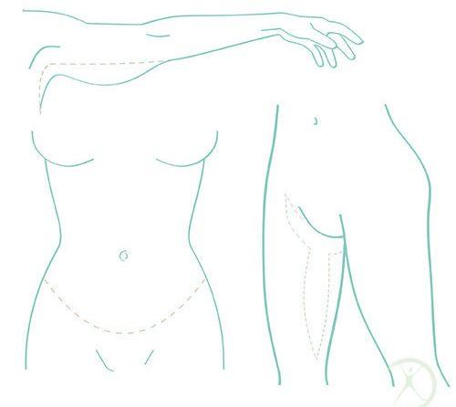 Cirurgias pós-emagrecimento