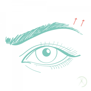 Ilustração: Levantamento das Sobrancelhas - Contorno Facial - Cirurgia Estética - Autor: Dr. Fernando Rodrigues