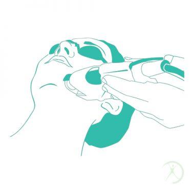 Ilustração: Peeling - Procedimentos Cirurgicos - Procedimentos em Ambulátório - Autor: Dr. Fernando Rodrigues