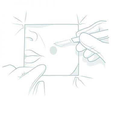 Ilustração: Pequenas cirurgias - Procedimentos Cirurgicos - Procedimentos em Ambulátório - Autor: Dr. Fernando Rodrigues