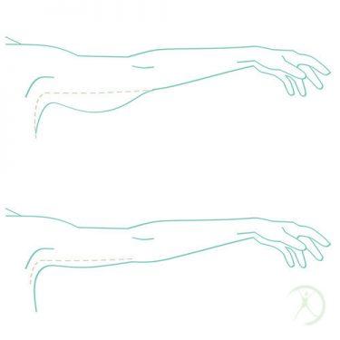 Ilustração: Plástica dos braços - Contorno Corporal - Cirurgia Estética - Autor: Dr. Fernando Rodrigues