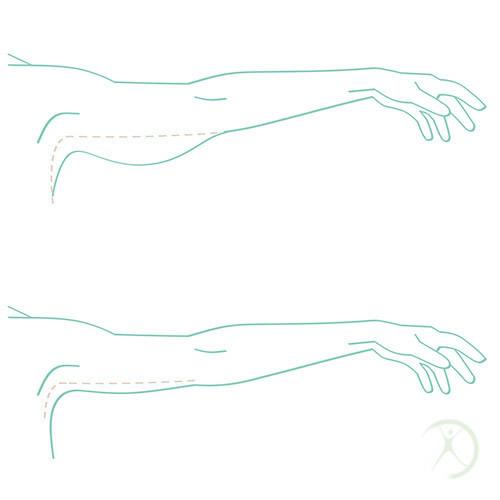 Cirurgia plástica dos braços