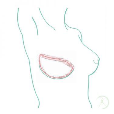 Ilustração: Reconstrução da mama - Tronco e Membros - Cirurgia Reconstrutora - Autor: Dr. Fernando Rodrigues