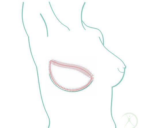Reconstrução da mama
