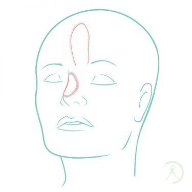Ilustração: Reconstrução de cabeça e pescoço - Contorno Corporal - Cirurgia Estética - Autor: Dr. Fernando Rodrigues