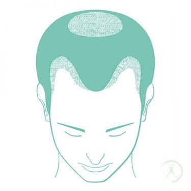 Ilustração: Transplante de Cabelos - Cirurgia da Estética - Cirurgia Estética - Autor: Dr. Fernando Rodrigues