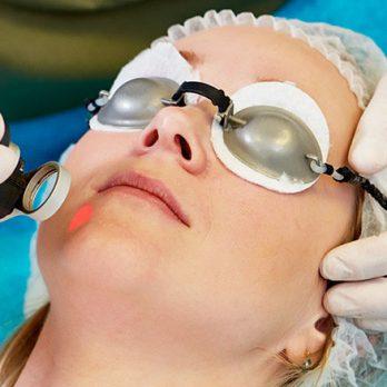 Peeling - Procedimentos Cirurgicos - Procedimentos em Ambulátório - Dr. Fernando Rodrigues - Cirurgião Plástico BH