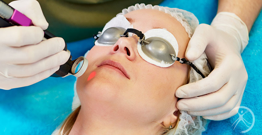 Peeling – Procedimentos Cirurgicos – Procedimentos em Ambulátório