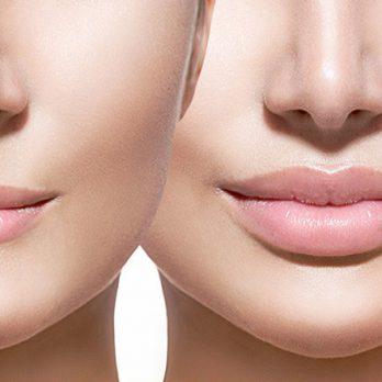 Preenchimentos - Contorno Facial - Cirurgia Estética - Dr. Fernando Rodrigues - Cirurgião Plástico BH