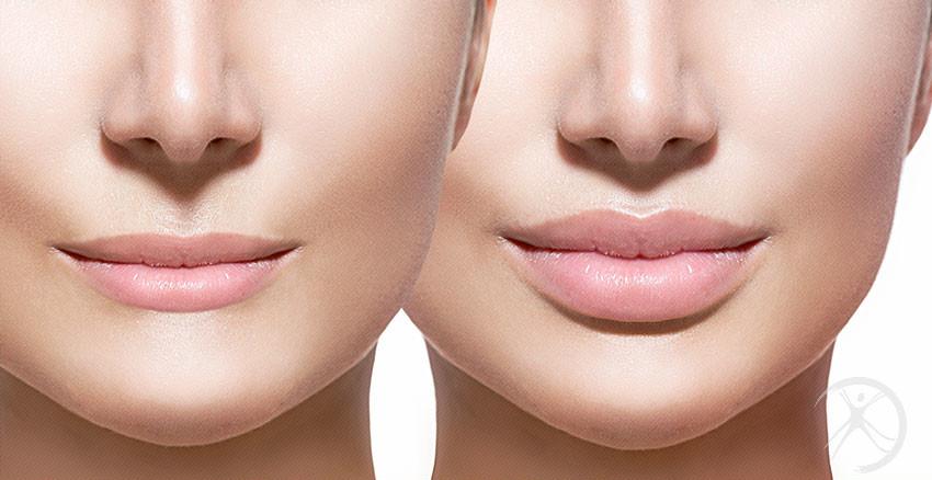Preenchimentos – Contorno Facial – Cirurgia Estética