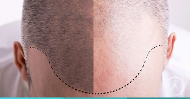 Transplante capilar (cirurgia da calvície) - Restauração Capilar - Cirurgia Plástica Estética - Dr. Fernando Rodrigues - Cirurgião Plástico BH