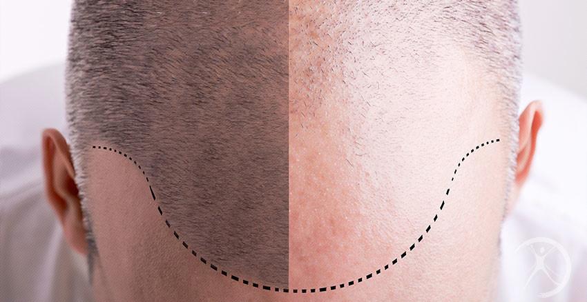Transplante capilar (cirurgia da calvície) – Restauração Capilar – Cirurgia Plástica Estética