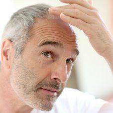 Transplante Capilar: Cirurgias Plásticas mais Realizadas por Homens