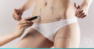 Lipoaspiracao pode causar efeito rebote - O efeito rebote pode acontecer logo após a remoção de gordura abdominal, que mesmo pequena, parece estimular uma atividade compensatória do organismo