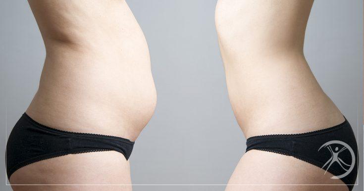 Lipoaspiração: Cirurgia Estética que Aumenta a Autoestima