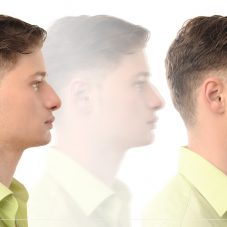 Rinoplastia: Cirurgia plástica que melhora a estética do nariz