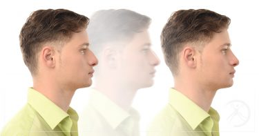 Rinoplastia - cirurgia plástica que melhora a estética do nariz