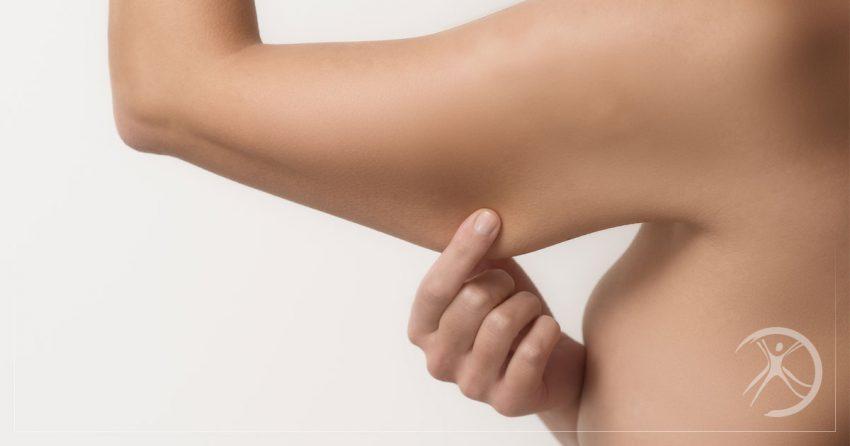 Braquioplastia: Cirurgia Plástica nos Braços Elimina Flacidez