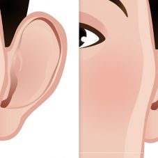 Otoplastia: Cirurgia Plástica para Correção das Orelhas de Abano