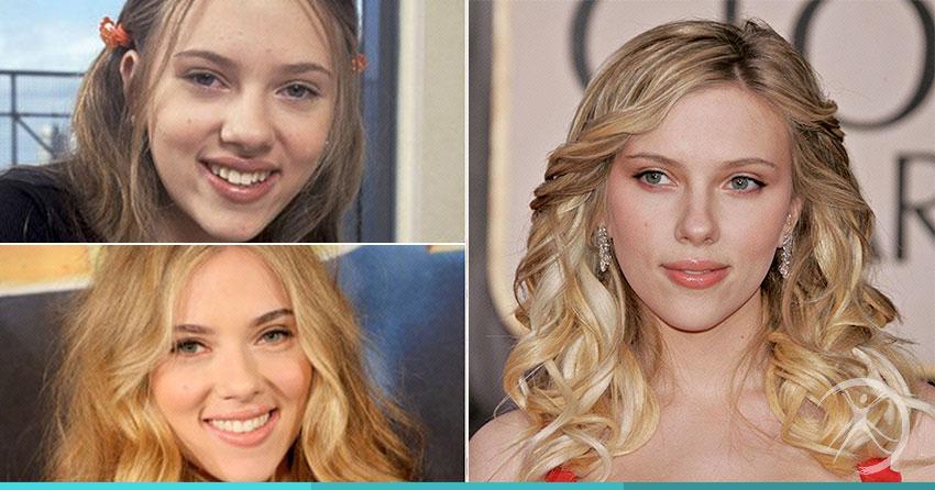 Scarlett Johansson - O nariz ideal