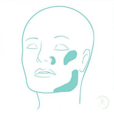 Ilustração: Outros implantes faciais - Cirurgia Estética - Dr. Fernando Rodrigues - Cirurgião Plástico BH