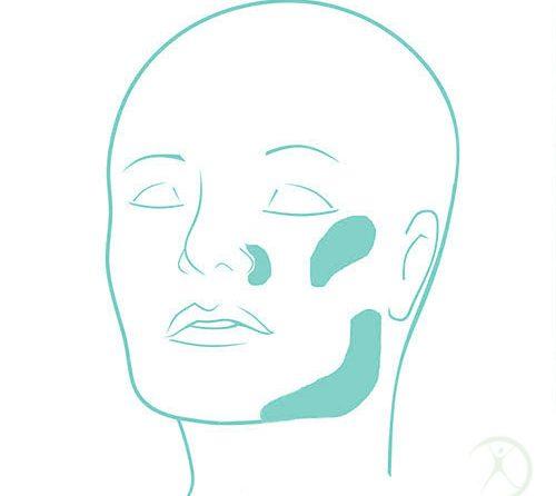 Ilustração: Outros implantes faciais – Cirurgia Estética – Dr. Fernando Rodrigues – Cirurgião Plástico BH