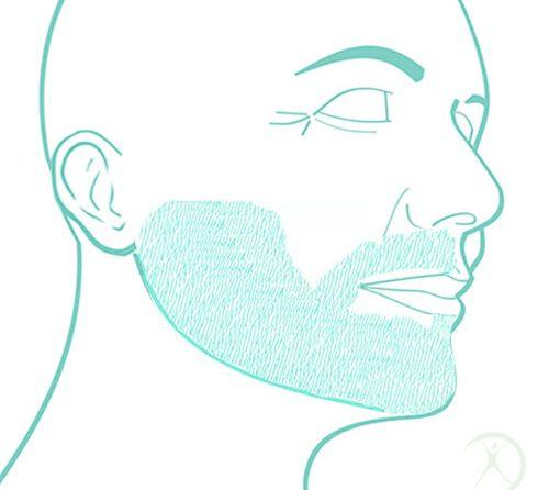Ilustração: Transplante de Barba – Contorno Facial – Cirurgia Estética – Dr. Fernando Rodrigues – Cirurgião Plástico BH