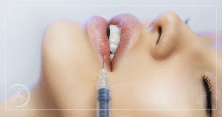Ácido Hialurônico Reduz Linhas de Expressão e Dá Volume aos Lábios