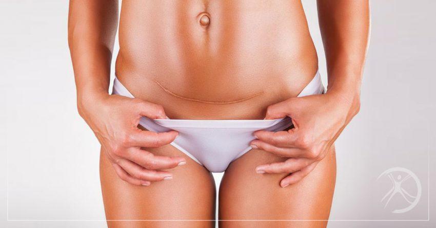 dr-fernando-rodrigues-cirurgia-plastica-bh-minimizar-cicatrizes-inchaco-e-vermelhidao-apos-cirurgia-plastica-blog