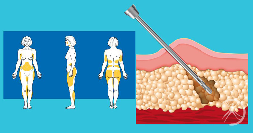 Cirurgia da Beleza - Dicas e Curiosidades sobre Lipoaspiração [Ilustração]