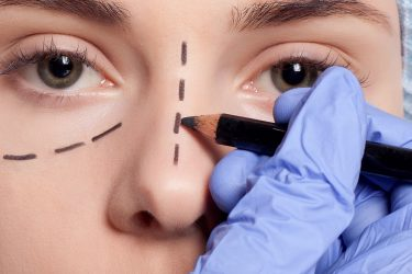5 tipos de Cirurgias Plásticas que Você Precisa Conhecer