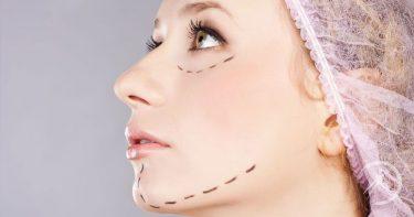 Conheça os Prós e Contras da Cirurgia Plástica do Queixo