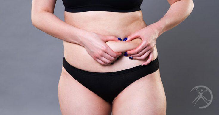 Abdominoplastia em âncora: descubra como é feita e pra quem é indicado