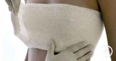 Como dever ser a recuperação pós cirurgia de mamoplastia de aumento