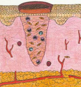 Proliferação de fibroblastos