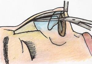 Rebaixamento da cartilagem septal 01