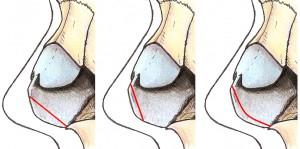 Resseccão septo caudal - tipos