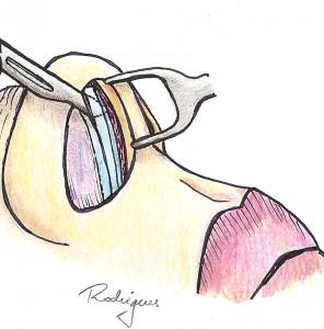 Resseccão septo caudal