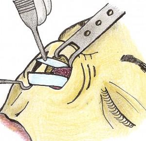 Resseccão da porcão ceflica da crura lateral