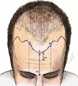 Marcação da linha anterior no homem