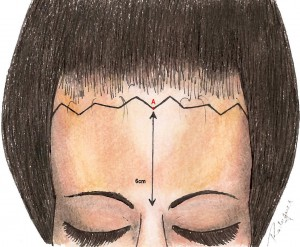 Marcação da linha anterior na mulher