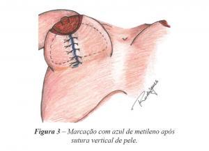 Figura 3 – Marcação com azul de metileno após sutura vertical de pele